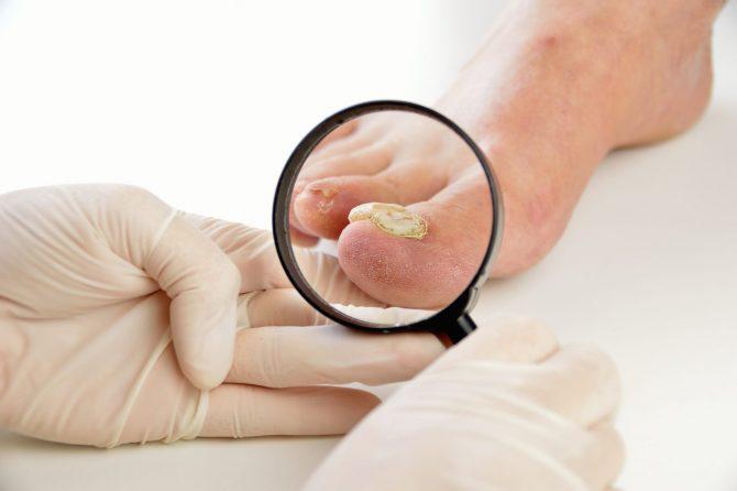 Gljivice na noktima – uzroci i rešenja