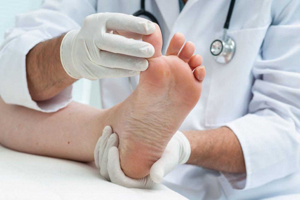 Gljivice na stopalima ne lečite sami, evo i zašto
