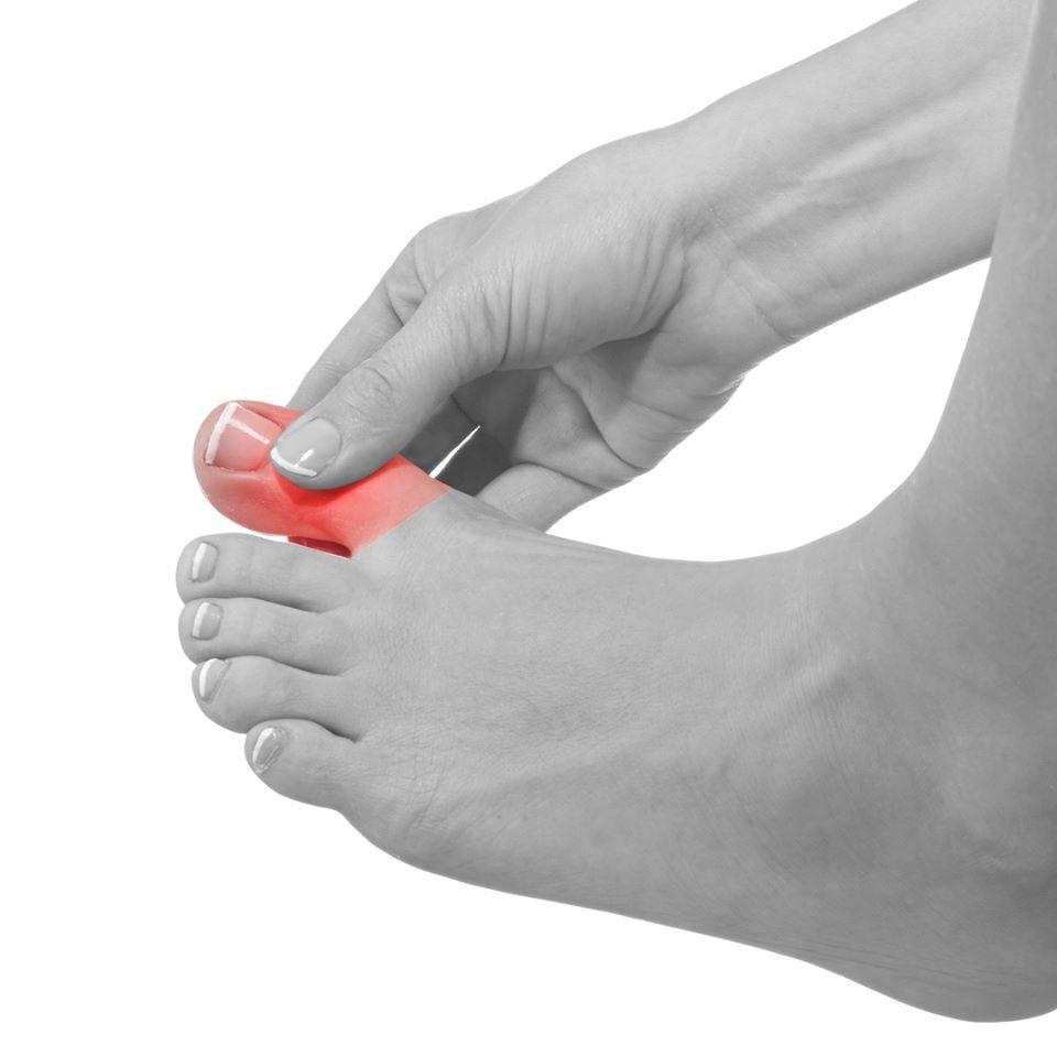 Urastao nokat – zašto nastaje i kako se leči