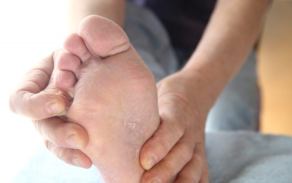 Atletsko stopalo - uporne gljivice koje vam ne daju mira