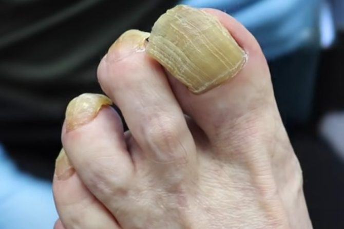 Zadebljanje nokta – na šta nas upozorava i kako se leči