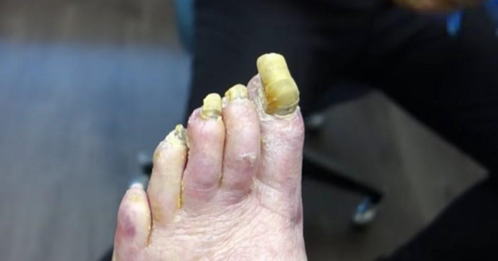 Žuti nokti na nogama