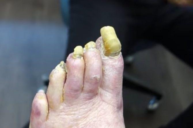 Žuti nokti na nogama – da li treba da se brinemo?