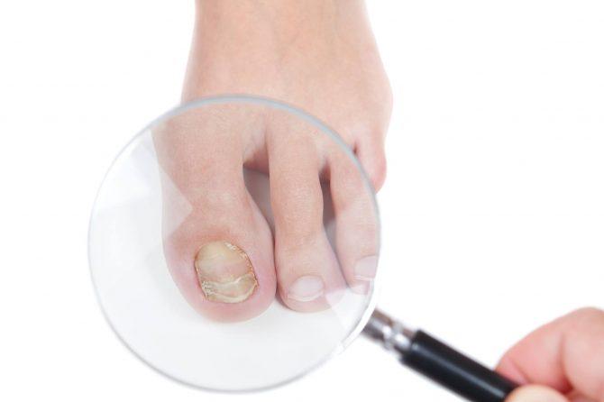Bolesti noktiju – NIKAKO ne ignorišite ove simptome
