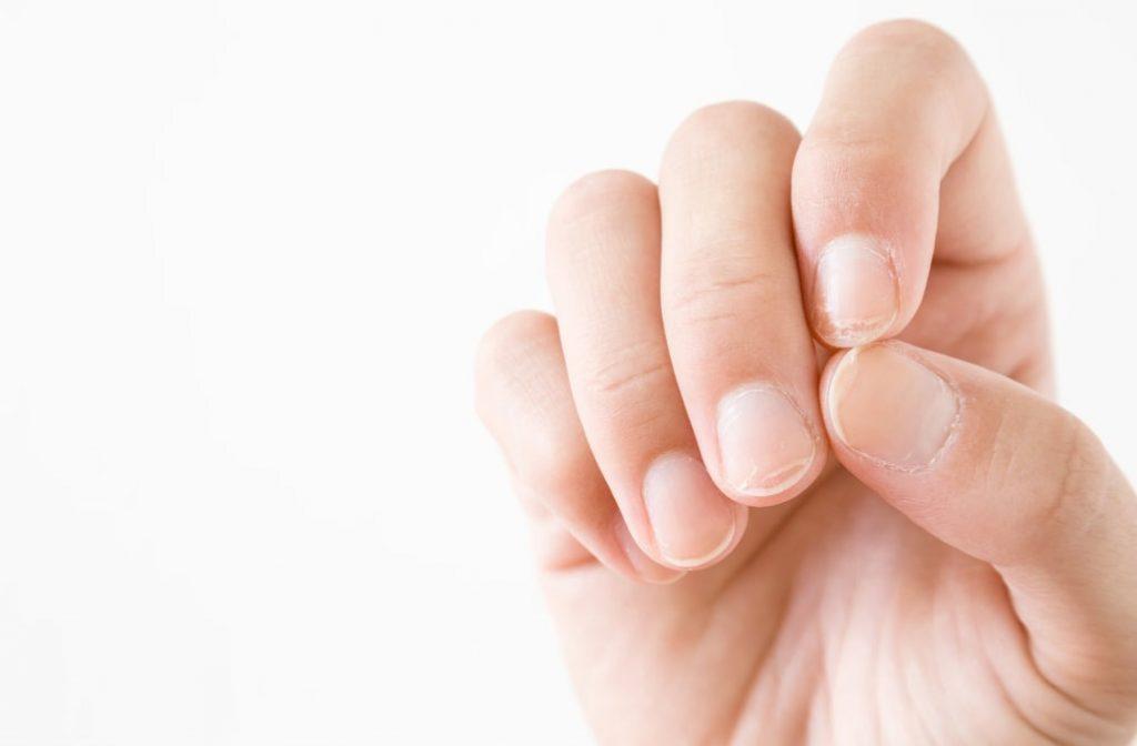 Brazde na noktima - da li su razlog za uzbunu?