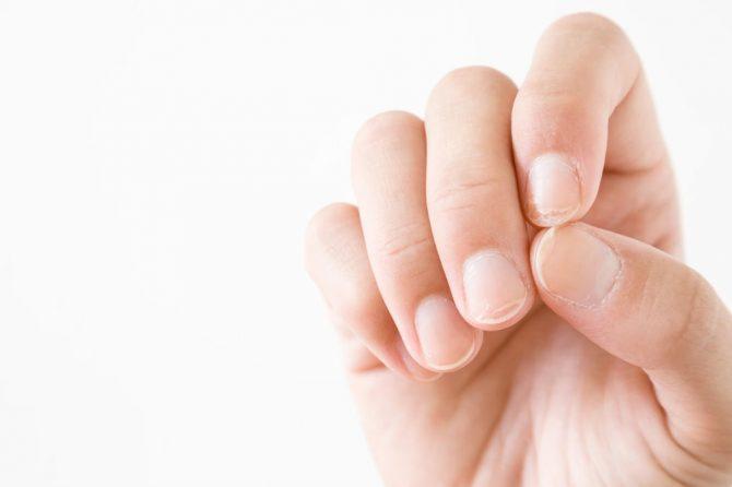 Brazde na noktima – da li su razlog za uzbunu?